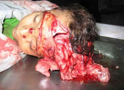 2484_gaza_beit_hanoun_dead_girl